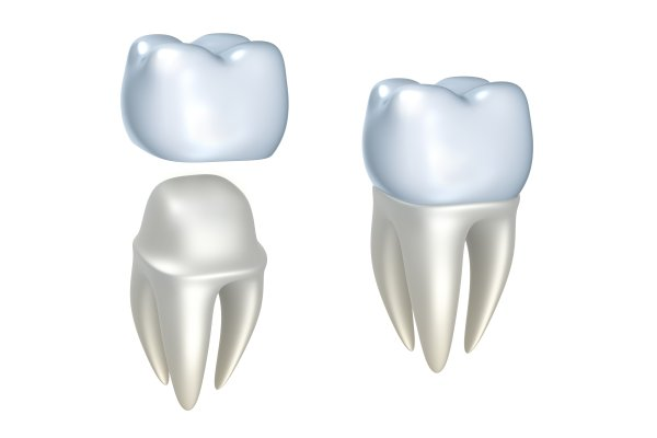 Natural Looking Porcelain Crowns