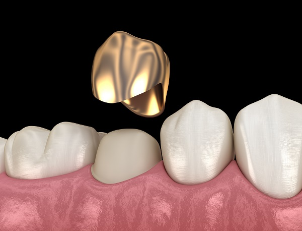 Options For Dental Crowns Material